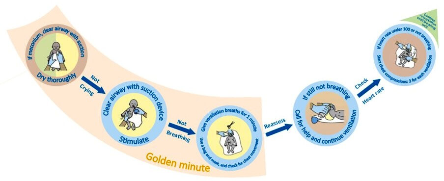 Golden Minute Instructions on the BabySaver resuscitation kit