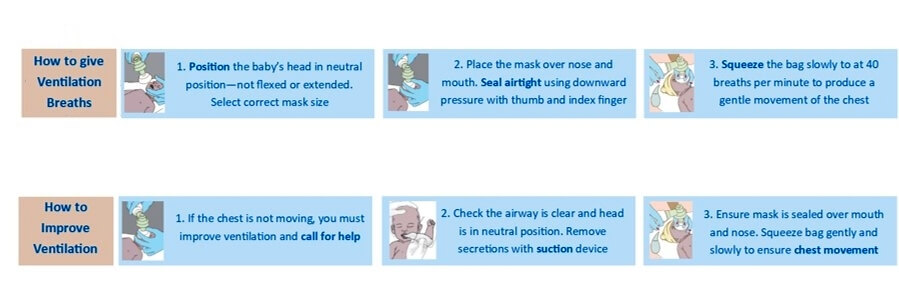 Instructions on the BabySaver resuscitation kit